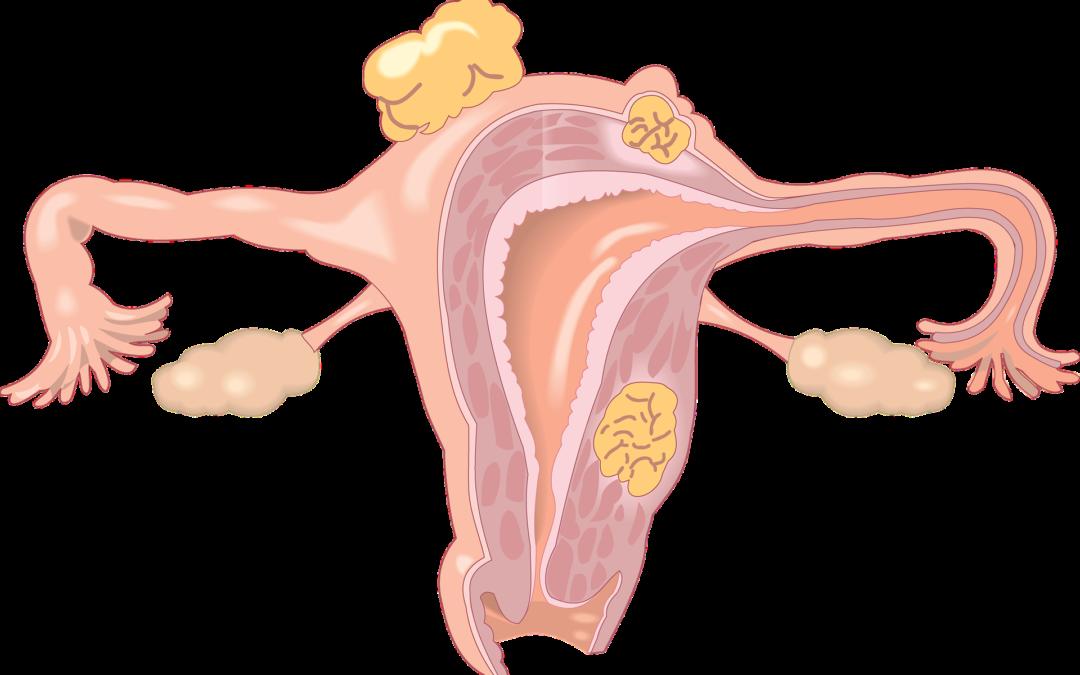 Estadísticas del Cáncer de Ovario en España